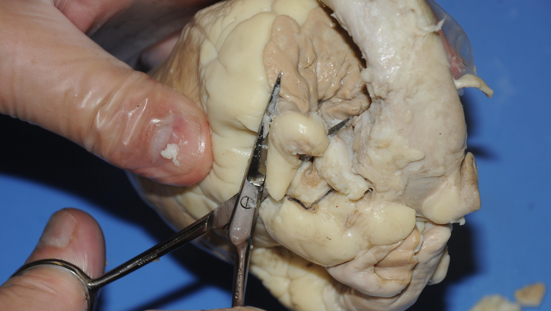 Dissection Videos for Classroom Use