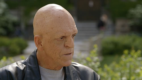 Photo of Michael Berryman who has ectodermal dysplasias